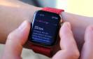 Die Apple Watch kann jetzt EKG in Deutschland