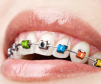 """Microsoft bereichert den boomenden Trendmarkt der Wearable Devices mit einer besonderen Innovation: """"Microsoft Braces"""". Mithilfe der digitalen Zahnspange können Träger schon bei leicht geöffnetem Mund Fotos und Videos aufnehmen."""